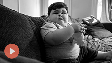 Hear first-hand accounts of living with symptoms that may be related to a rare genetic disorder of obesity